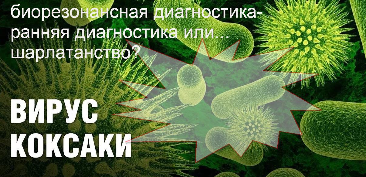 """Вирус Коксаки – диагностика  на """" биорезонансе""""   руками  эпидемиолога- домашняя история."""