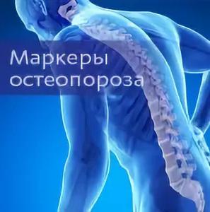 """""""Море информации"""" каждому при исследовании   крови на  маркеры остеопороза."""